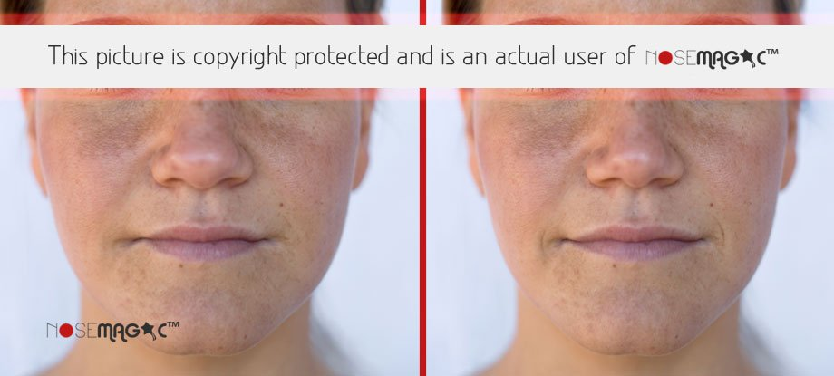 Nose Magic Before and After Pictures