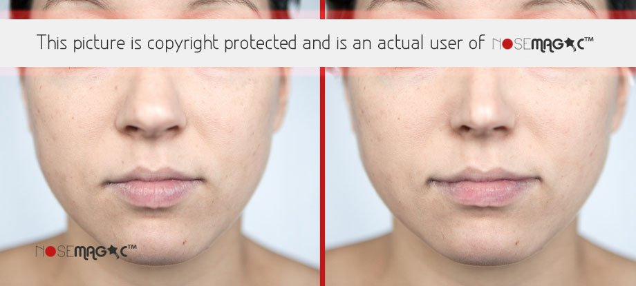 Results of Using Nose Magic Pictures